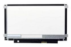 "Lenovo ThinkPad 11E ChromeBook (4th Gen) display 11.6"" LED LCD displej WXGA HD 1366x768"